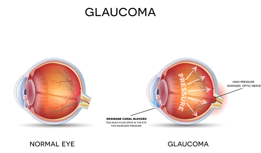 GLAUCOMA – Dr. Piantanida Como