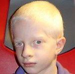 Posizione Anomala del Capo in Albinismo